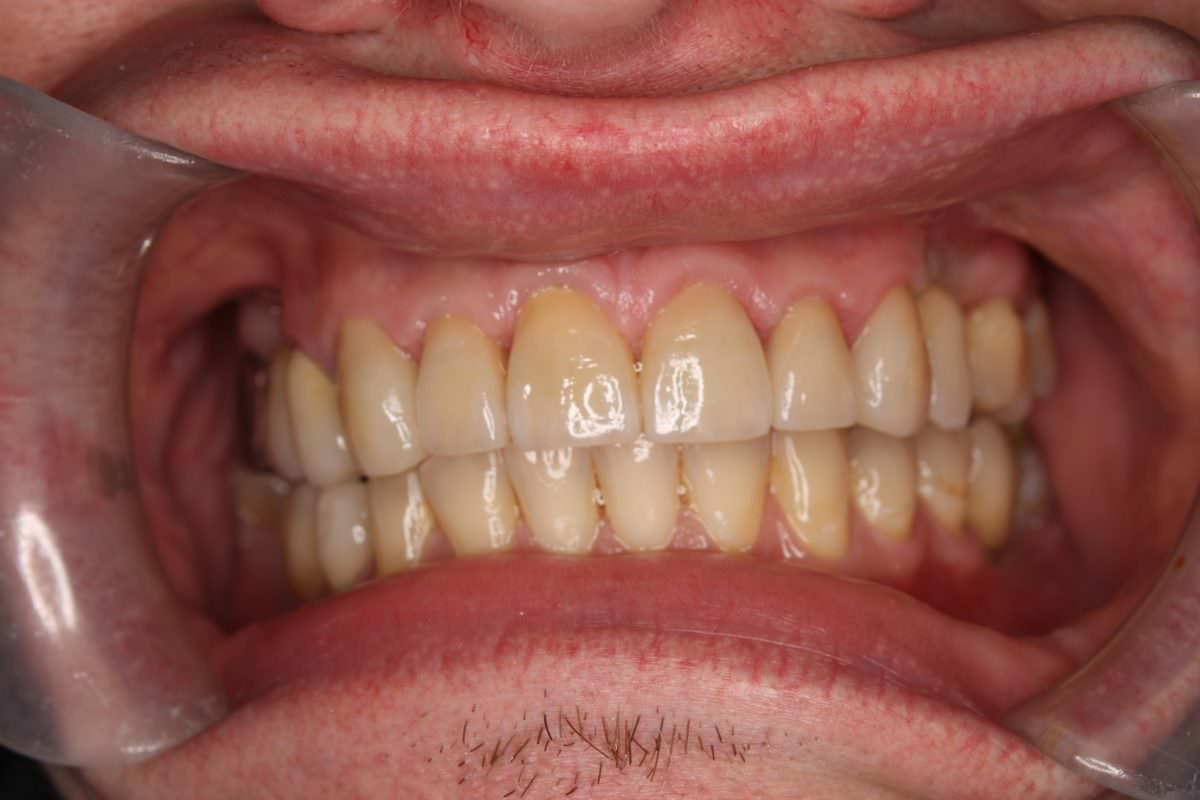 After cosmetic dental work undertaken at Spedding Dental Clinic