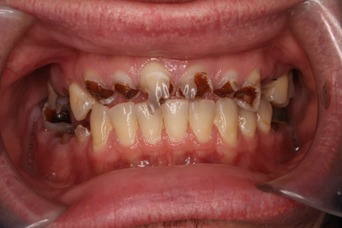 Before cosmetic dental work undertaken at Spedding Dental Clinic