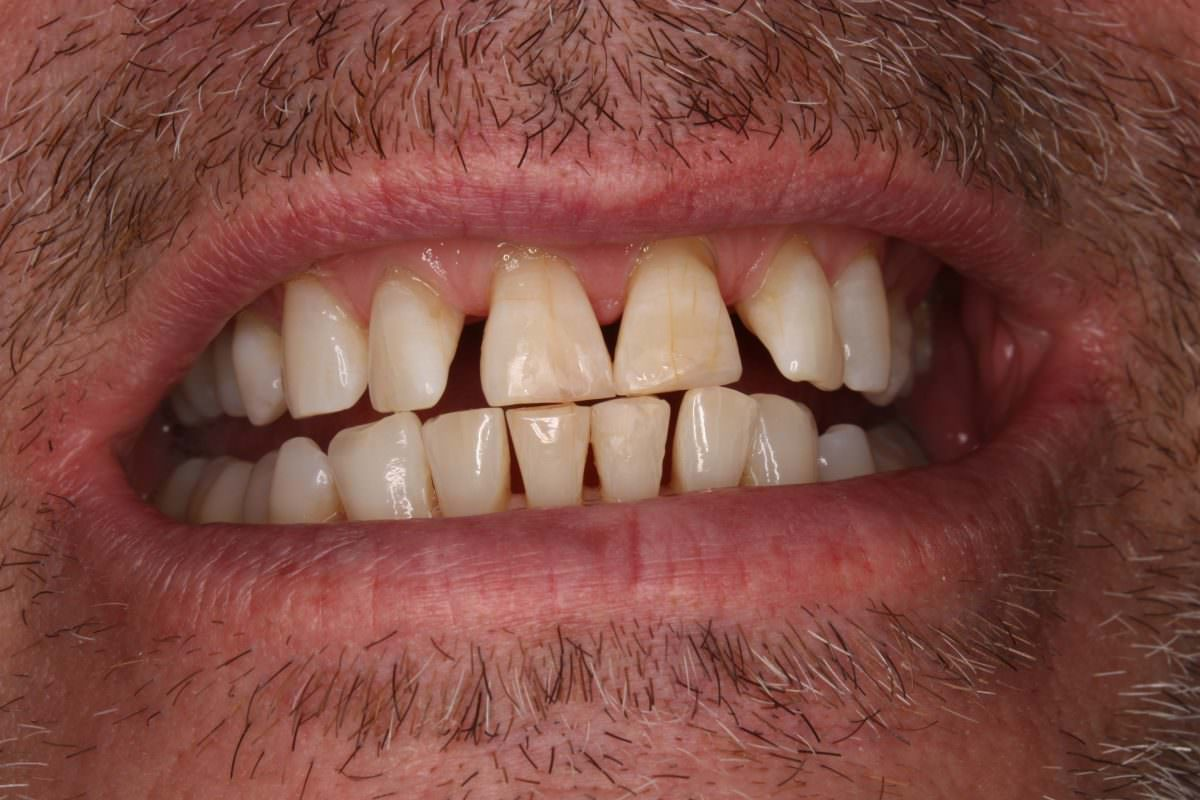 After Professional Teeth Whitening treatment at Spedding Dental Clinic Carlisle Carlisle