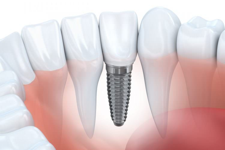 Dental implant diagram showing the screw and the gums