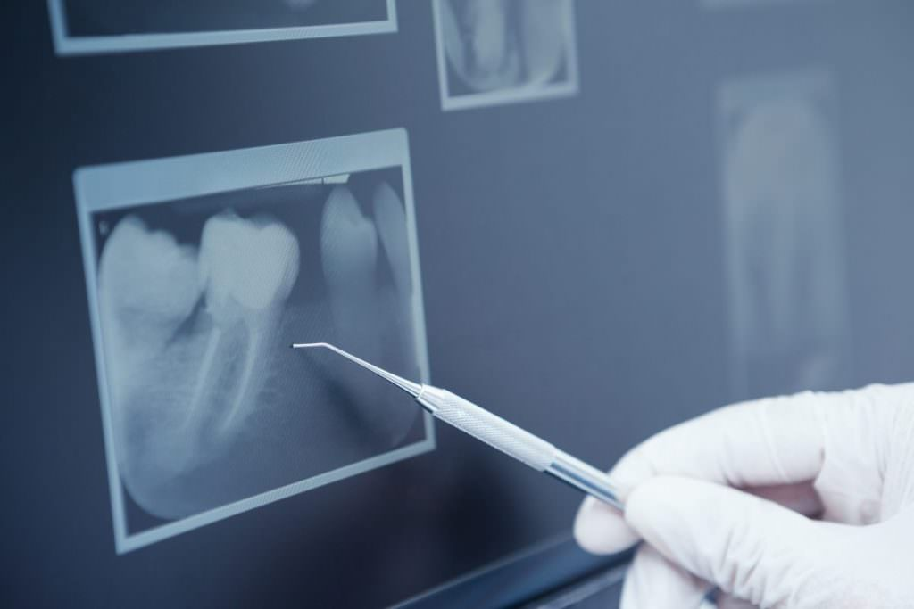 tooth X-ray in private dentistry Carlisle