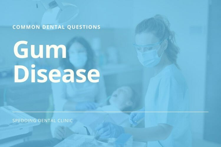 Common Dental Questions About Gum Disease