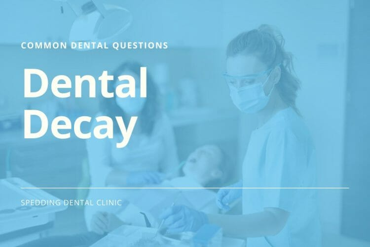 Common Questions About Dental Decay