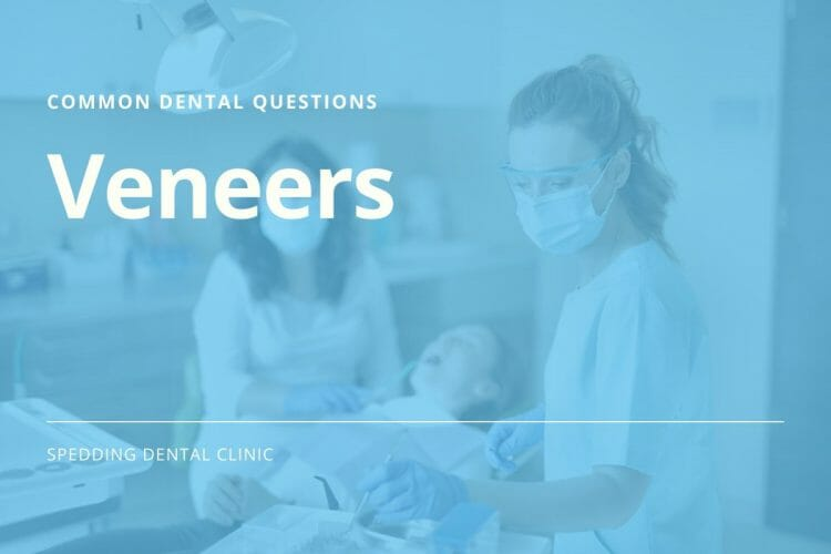 Common Questions About Veneers
