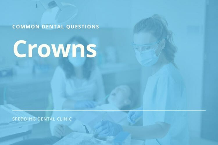 Common questions about dental crowns