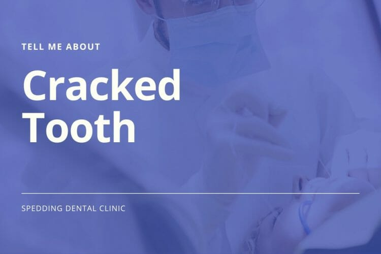 Tell Me About Cracked Tooth