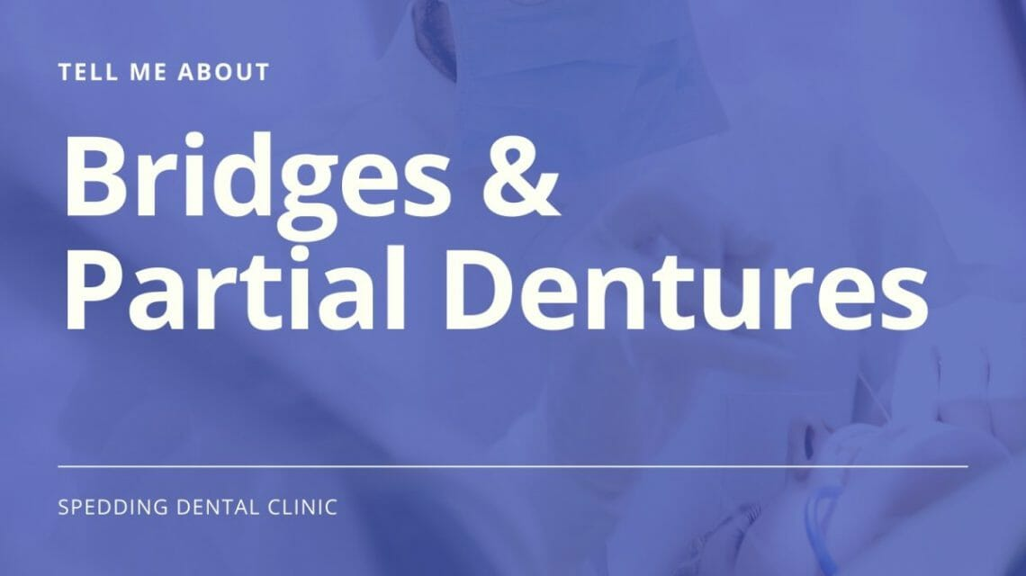 Tell Me About Bridges & Partial Dentures