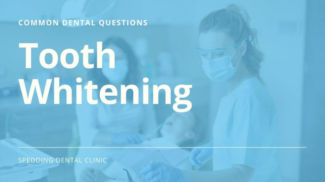 Common Dental Care Questions About Tooth Whitening