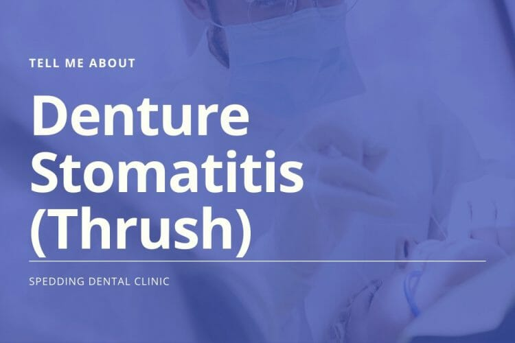 Tell Me About Denture Stomatitis (Thrush)