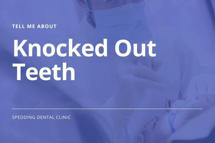 Knocked out teeth