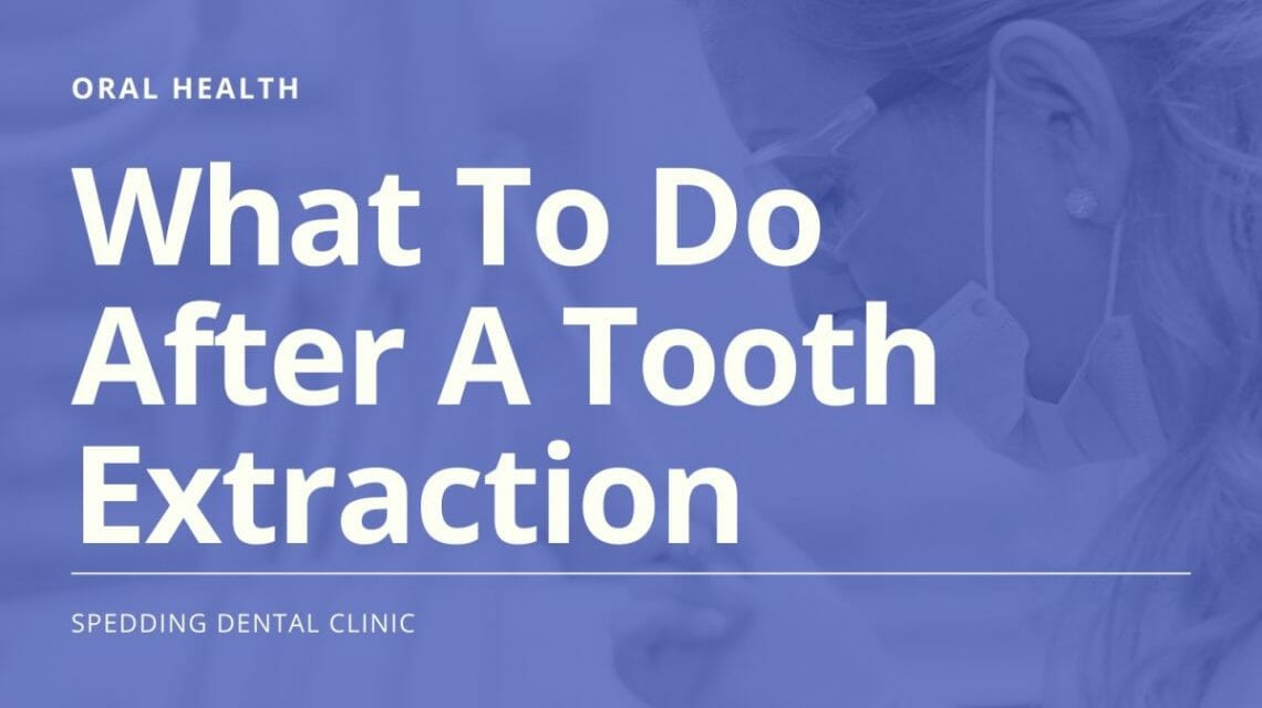 What to do after an extraction