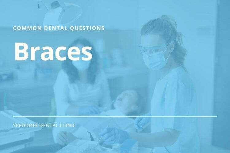 Common Dental Care Questions For Braces
